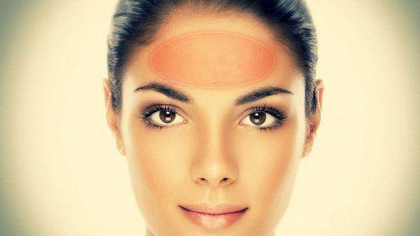 Прыщи на лице в 30-40 лет у женщины (причины)